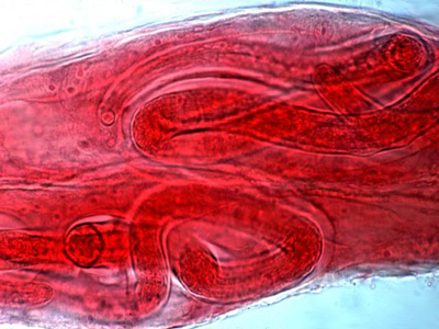 Trichinella spiralis cysts in striated muscle nurse cells.